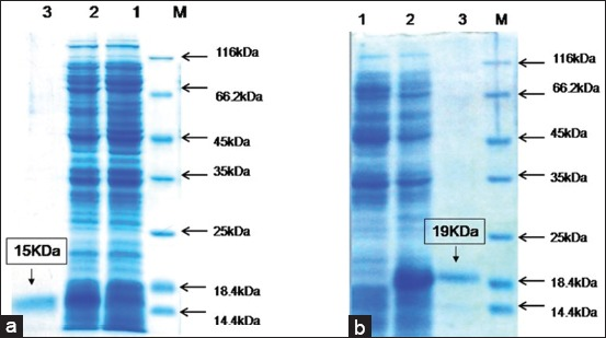 Recombinant horse interleukin-4 and interleukin-10 induced a mixed inflammatory cytokine response in horse peripheral blood mononuclear cells.